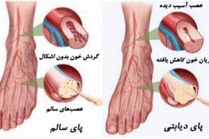 علل ایجاد زخم پای دیابتی