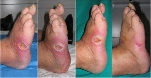 تشخیص و درمان زخم پای دیابتی