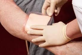 درمان زخم با پانسمان نوین
