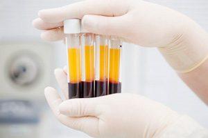 درمان زخم به روش PRP