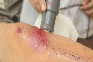 درمان اولتراسوند