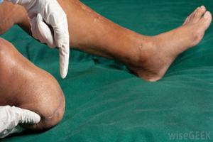 قطع کردن پا یا آمپوتاسیون