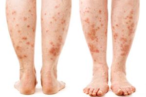 مشکلات و بیماری های پوستی در دیابت