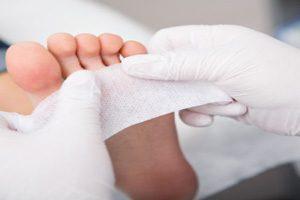 پیشگیری از بروز زخم پای دیابتی