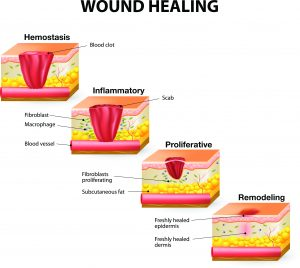 مراحل درمان زخم