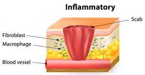 التهاب - درمان زخم
