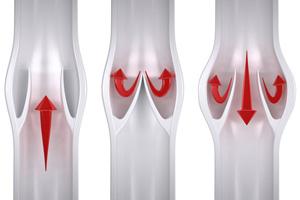 زخم ایسکمیک چیست، علل و درمان