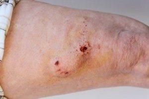 درمان زخم عمیق