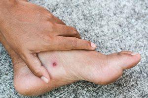 زخم باز چیست، علل، انواع و علائم آن