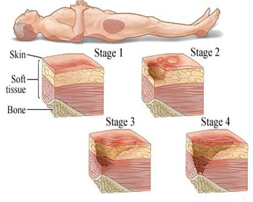 درمان قطعی زخم بستر، زخم دیابتی و زخم وریدی