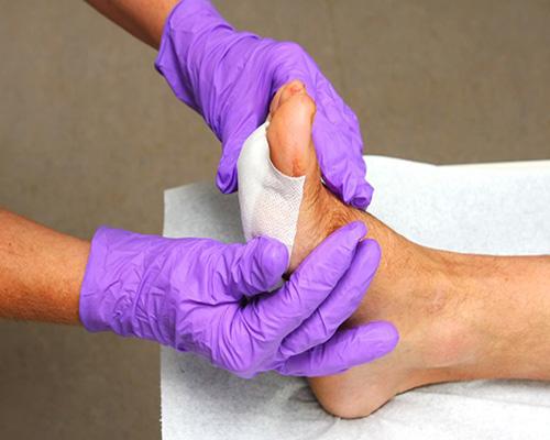 روش های درمان زخم بستر و زخم دیابتی