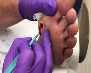 مدیریت زخم پای دیابتی با دبریدمان