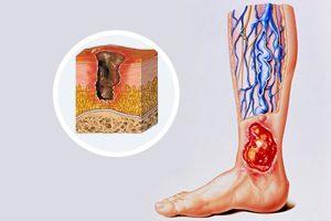 علل بروز زخم وریدی