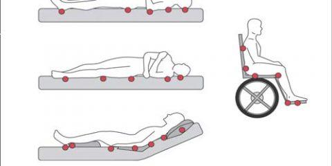 روش های نوین درمان زخم بستر