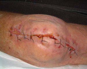 علائم عفونت زخم جراحی
