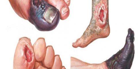 عوارض درمان نکردن زخم پای دیابتی