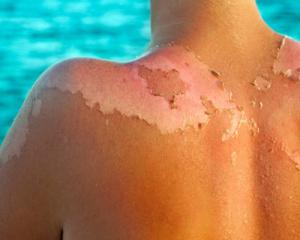 مراقبت از زخم های سوختگی تابستانی