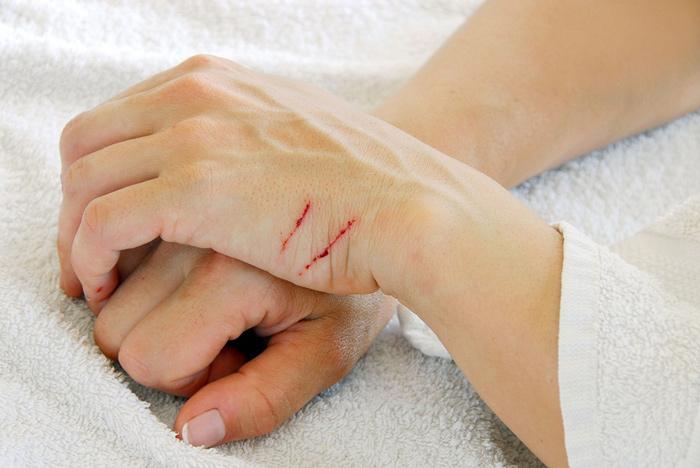 درمان زخم ناشی از گاز حیوانات