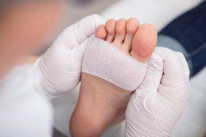 درمان زخم های پای دیابتی