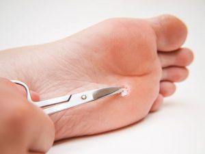 زخم پای دیابتی می تواند کشنده باشد - این درمان جدید می تواند به شما کمک کند.