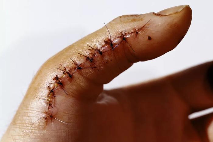 عفونت زخم
