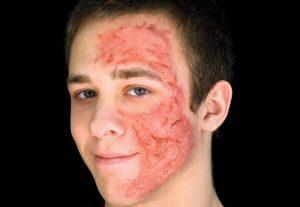 سوختگی صورت