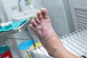 بهبود زخم پا