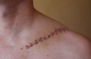 مدیریت زخم جراحی، عاملی موثر در بهبود زخم