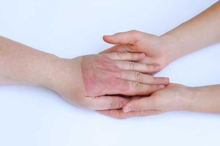 مدیریت درد بعد از زخم سوختگی
