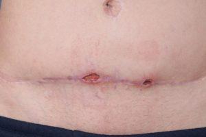 چه عواملی باعث عفونت زخم بعد از سزارین می شوند؟