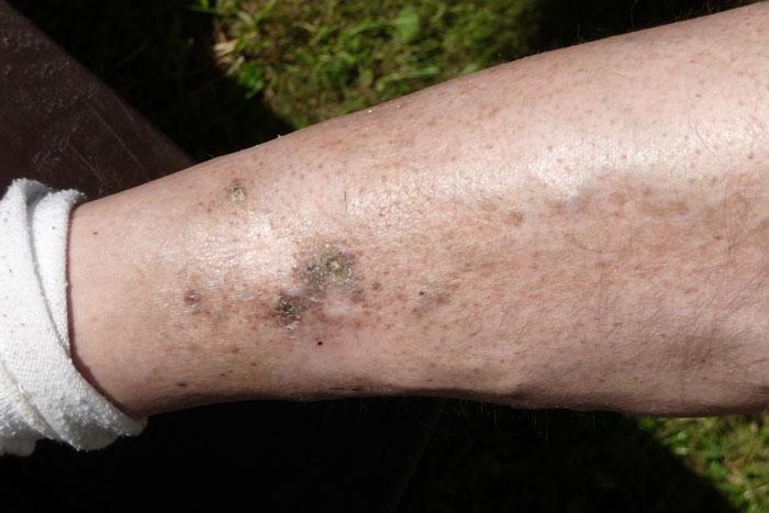 تشخیص و درمان زخم وریدی