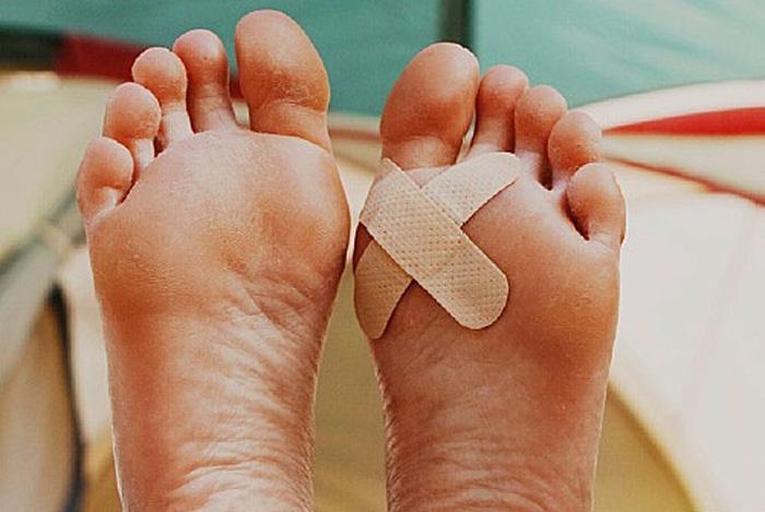 مراقبت از زخم های کوچک در پا