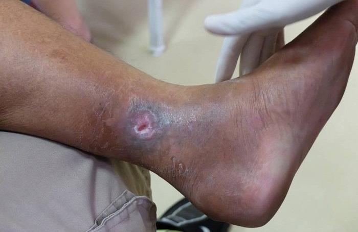 تفاوت زخم های شریانی و وریدی در چیست؟