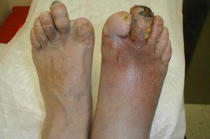 عفونت پای دیابتی