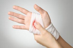 6 درمان خانگی برای متوقف کردن خونریزی