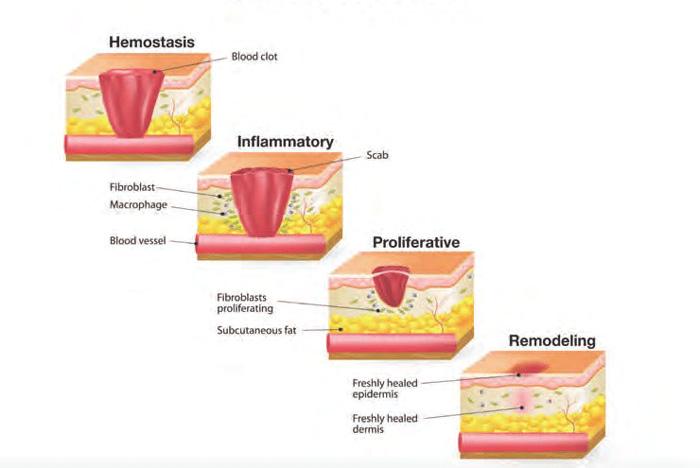 4 مرحله ی بهبودی زخم