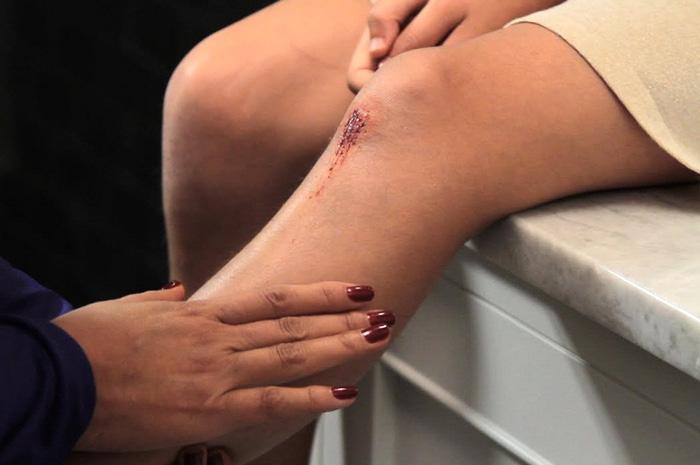 ۷ درمان خانگی برای ترمیم زخم های باز