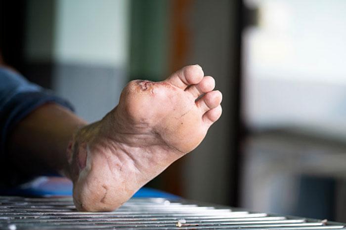 علل و درمان زخم پای دیابتی