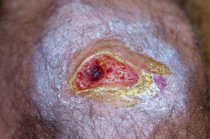 علامت های عفونت و آلودگی زخم که باید جدی بگیرید