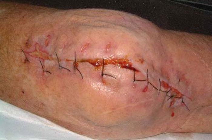عفونت محل جراحی چیست و چگونه درمان می شود؟