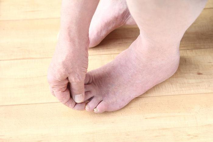 چگونه می توان پای دیابتی را در خانه درمان کرد؟