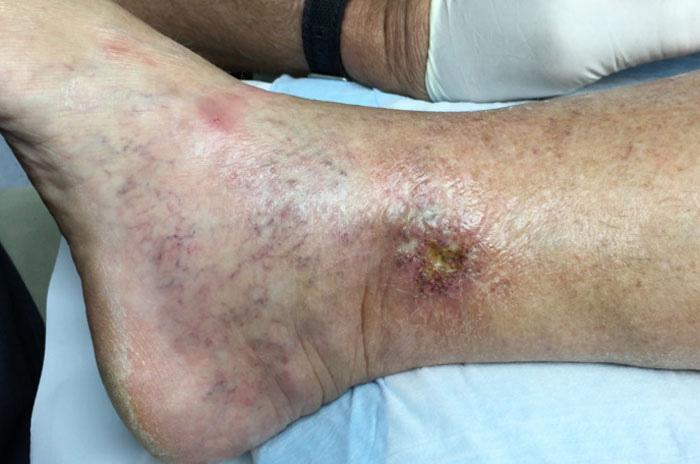 علت طولانی شدن دوره درمان زخم چیست؟