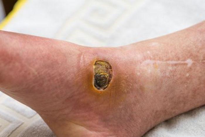 نکات مهم در درمان زخم پای دیابتی