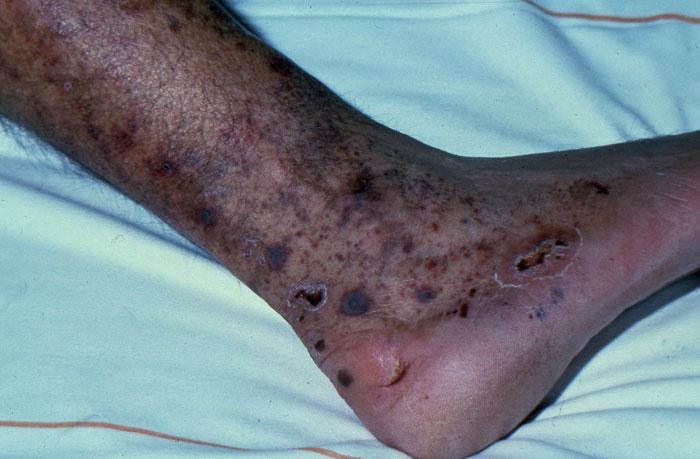 تشخیص و درمان زخم عروقی؛ چگونه از این زخم ها رها شویم؟