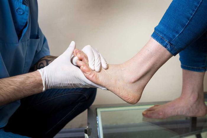 مراقبت های خانگی زخم دیابتی